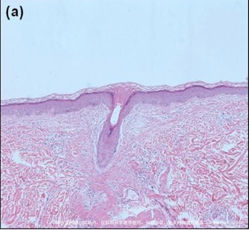 毛发苔藓症状图片