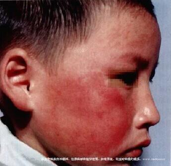 传染性红斑-面颈部